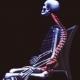 Evaluación y Corrección postural