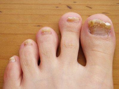 Las uñas la eccema el tratamiento