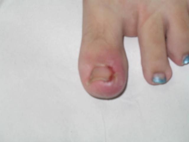 Fisioterapia valencia u as encarnadas onicocriptosis for Operacion de pies