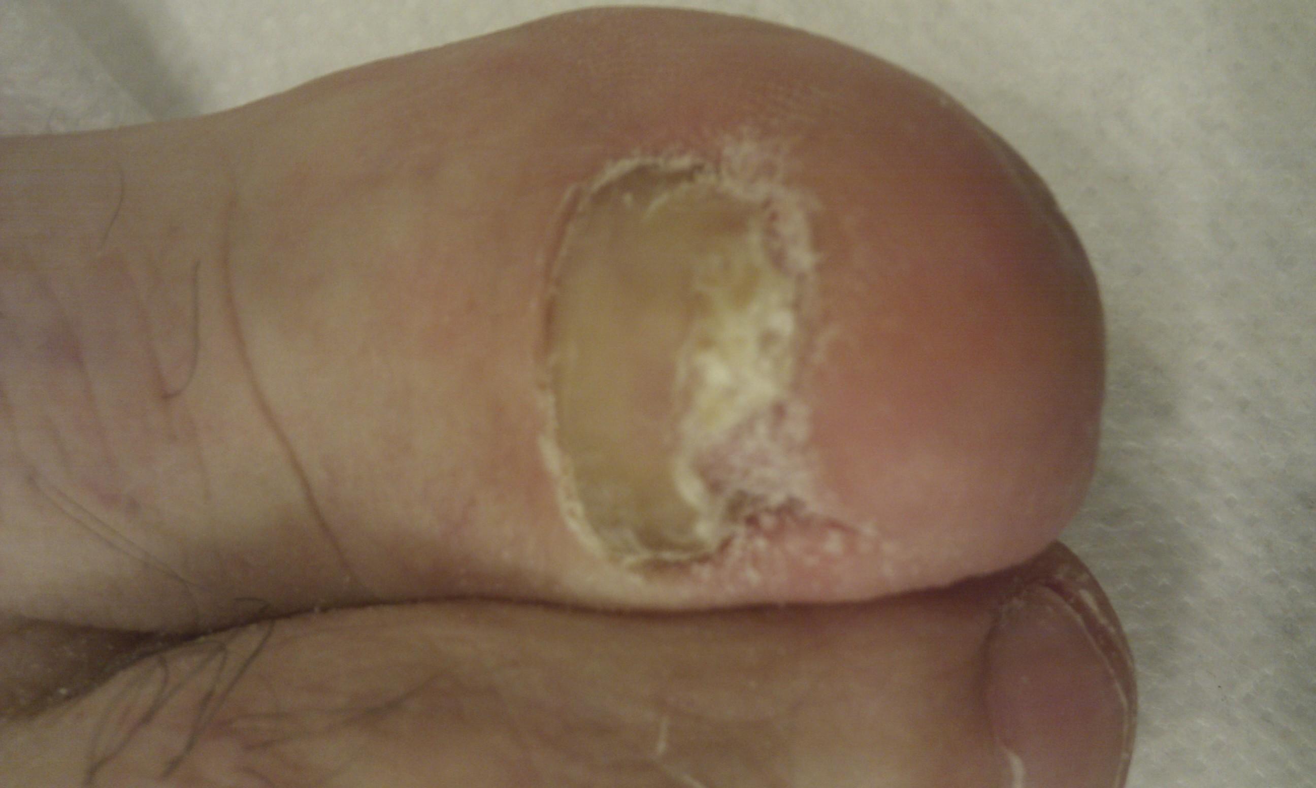 Las uñas blancas en las manos los medios públicos del tratamiento