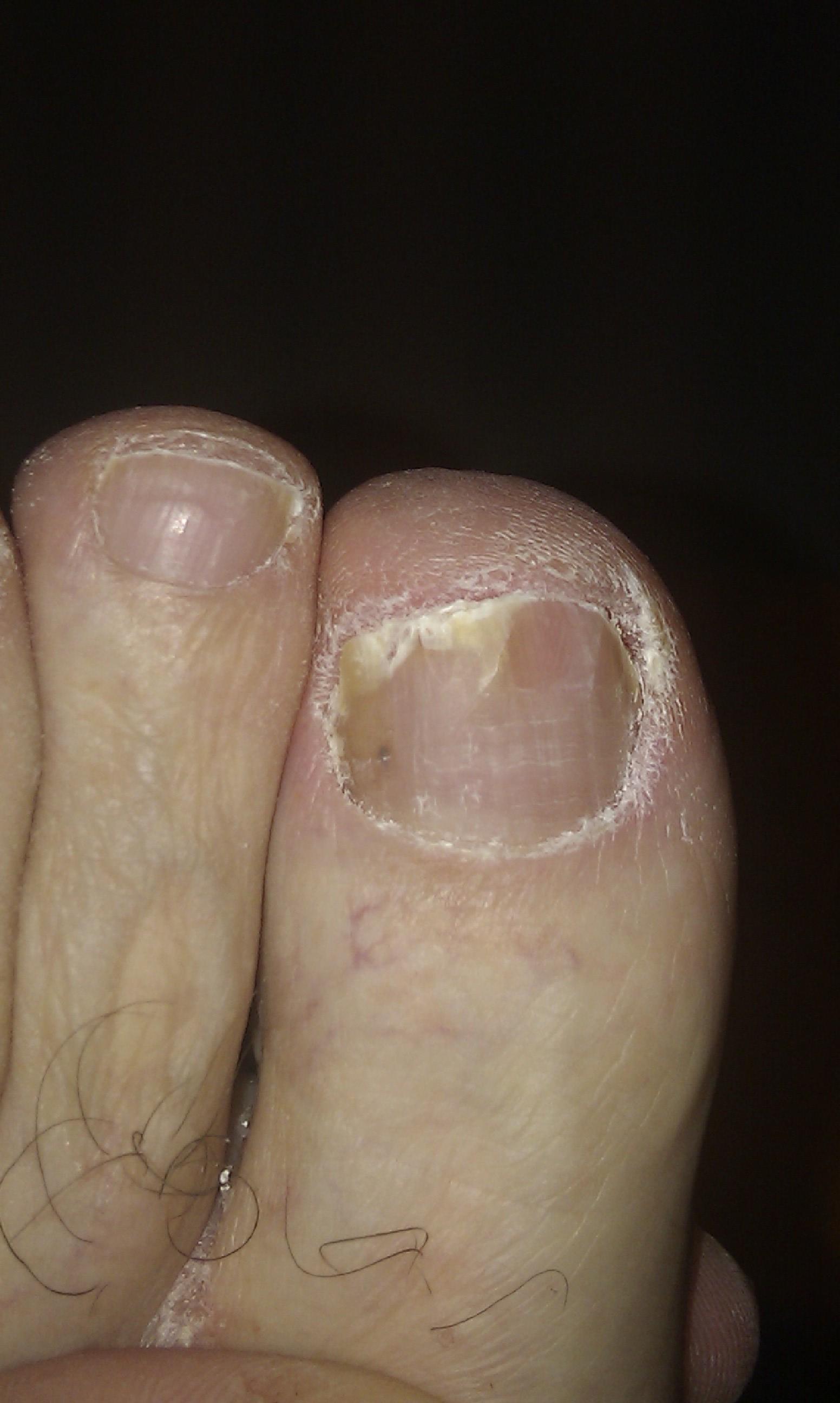 Mi rutina para el cuidado de las u as de los pies my toe - Lejia para los hongos ...