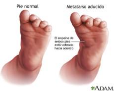 pie_metatarso_aducto
