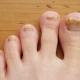 Hongos en las uñas de los pies (onicomicosis)