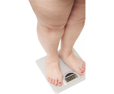 Problemas en la rodilla por sobrepeso